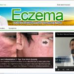 Eczema-PLR-Blog